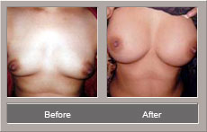 Breast Enlargement (Before and After)