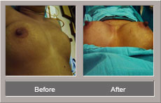 Breast Augmentation (Before and After)
