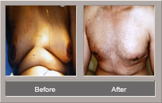 Male Breast Reduction (Before and After)