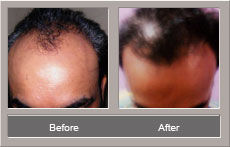 hair transplant surgery (Before and After)