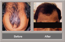 hair transplantation surgery (Before and After)
