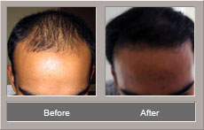 hair transplant (Before and After)