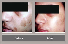 Laser Treatment (Before and After)