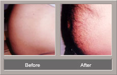 Liposuction (Before and After)