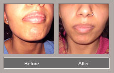 lip reduction (Before and After)
