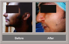 Rhinoplasty Surgery (Before and After)