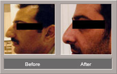 Nose Job Procedure (Before and After)