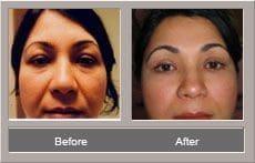 Face Lift (Rhytidectomy)